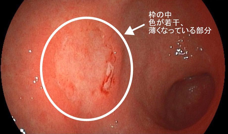 胃がんの内視鏡画像